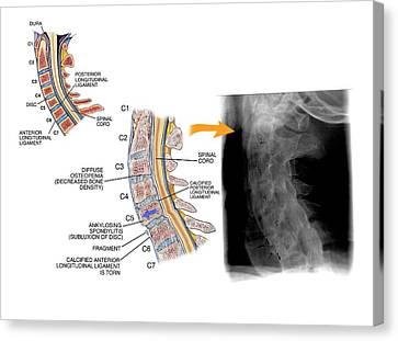Ankylosing Spondylitis Canvas Print by John T. Alesi