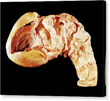 Aorta In Syphilis Canvas Print