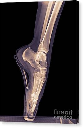 Ballet Dancer X-ray 3 Canvas Print by Guy Viner