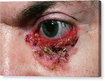Basal Cell Carcinoma Canvas Print by Microscape