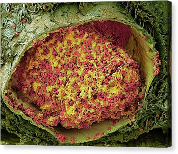 Blood Clot In The Lung Canvas Print by Microscopy Core Facility, Vib Gent