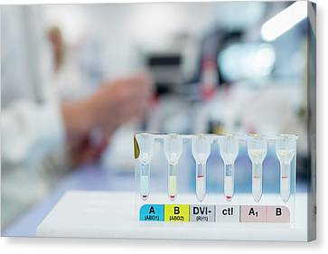 Blood Group Analysis Canvas Print by Aberration Films Ltd