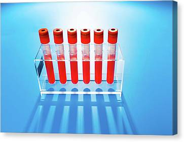 Blood Samples In Tubes Canvas Print