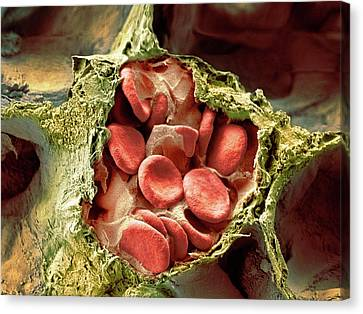 Blood Vessel And Alveoli In Lung Tissue Canvas Print by Microscopy Core Facility, Vib Gent