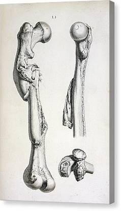 Bone Deformities Canvas Print by British Library