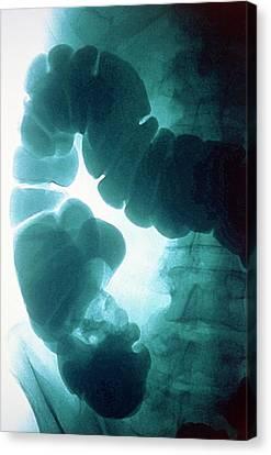 Bowel Cancer Canvas Print by Gjlp