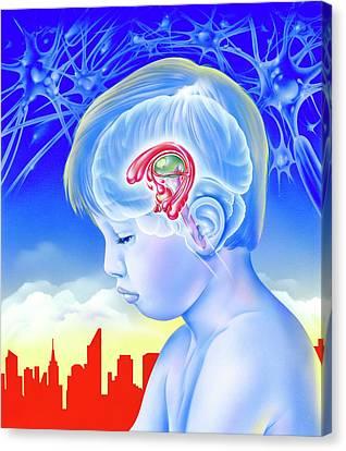 Brain And Childhood Depression Canvas Print by John Bavosi