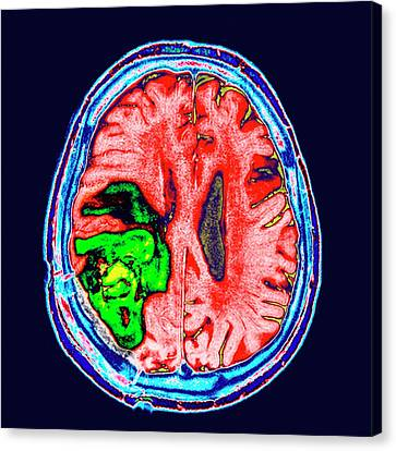 Brain Cancer Canvas Print by Dr P. Marazzi