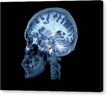 Psychiatric Canvas Print - Brain In Alzheimer's Disease by Zephyr