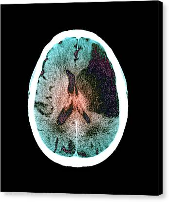 Scan Canvas Print - Brain In Stroke by Zephyr