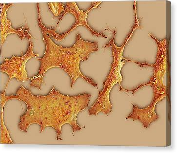 Sem Canvas Print - Breast Cancer Cells by Science Photo Library