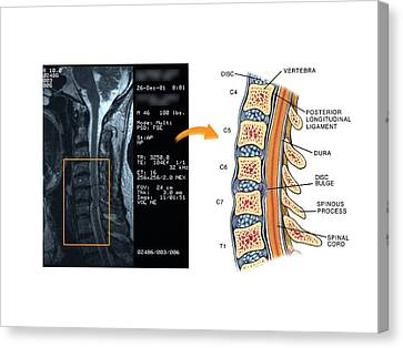 Bulging Disc In The Cervical Spine Canvas Print by John T. Alesi