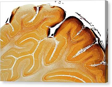 Histology Canvas Print - Cerebellum by Dr Keith Wheeler