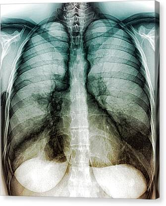 Chest Infection Canvas Print by Zephyr