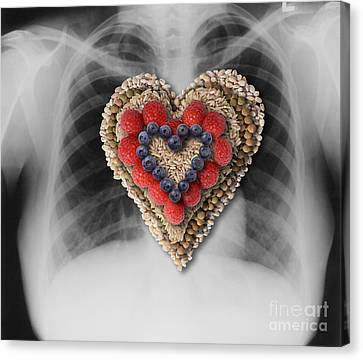Chest X-ray & Heart-healthy Foods Canvas Print by Gwen Shockey