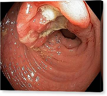 Endoscopy Canvas Print - Colon Cancer by Gastrolab