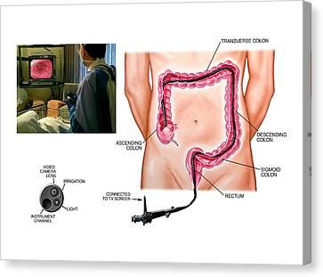 Colonoscopy Procedure Canvas Print by John T. Alesi