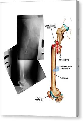 Comminuted Fracture Of The Femur Canvas Print