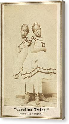 Conjoined Twins Canvas Print by Library Of Congress