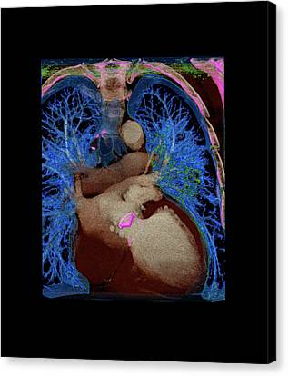 Coronary Artery Bypass Graft Canvas Print by Anders Persson, Cmiv