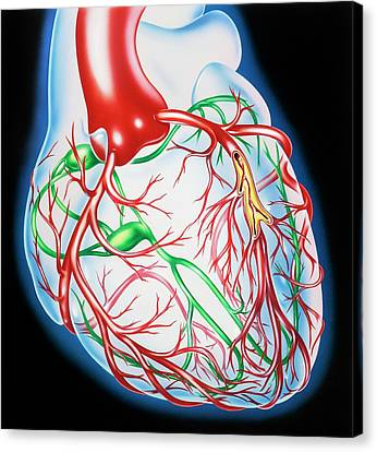 Coronary Atherosclerosis Canvas Print by John Bavosi