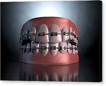 Creepy Canvas Print - Creepy Teeth With Braces by Allan Swart