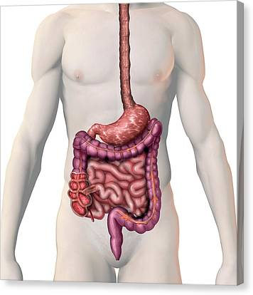 Appendix Canvas Print - Crohn's Disease by Carol & Mike Werner