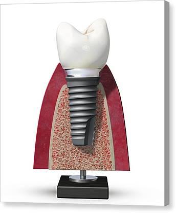 Titanium White Canvas Print - Dental Implant, Artwork by Science Photo Library