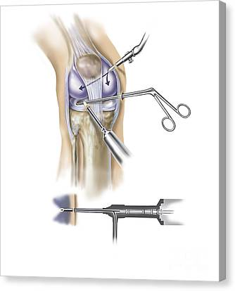Detail Of Human Knee Showing Insertion Canvas Print by TriFocal Communications