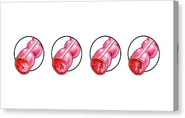 Development Of Colon Cancer Canvas Print by John T. Alesi