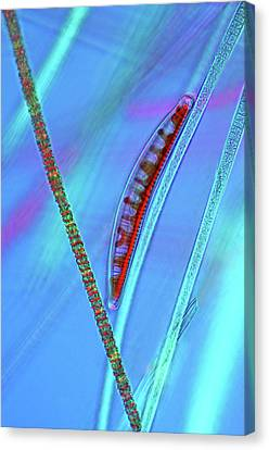 Diatom On Cyanobacteria Canvas Print by Marek Mis