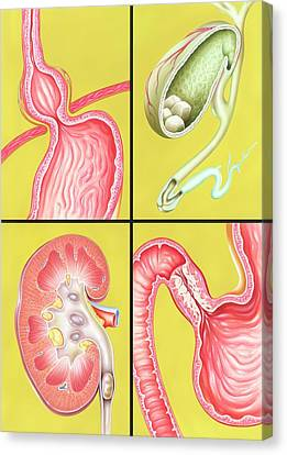 Hernia Canvas Print - Digestive-excretory Disorders by John Bavosi