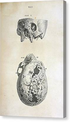 Diseased Human Skull Canvas Print by British Library