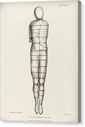 Disinterred 15th-century Body Canvas Print by Middle Temple Library