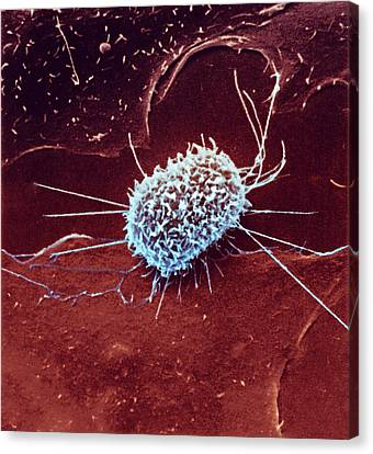 Dividing Cancer Cell Canvas Print by Ami Images/national Cancer Institute