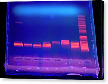 Dna Electrophoresis Under Uv Light Canvas Print by Louise Murray
