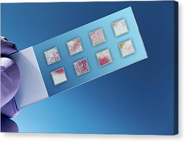 Dna Samples On A Microscopy Slide Canvas Print