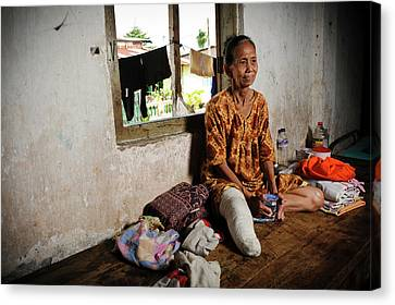 Elderly Woman With Leprosy Canvas Print