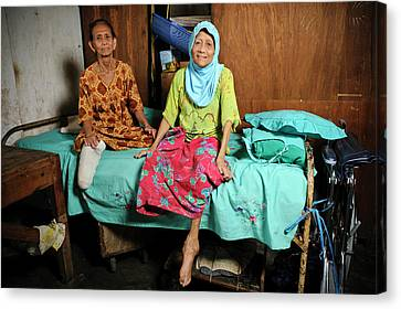 Elderly Women With Leprosy Canvas Print