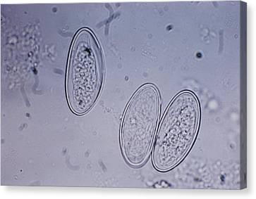 Enterobius Vermicularis Canvas Print by Bill McMurray