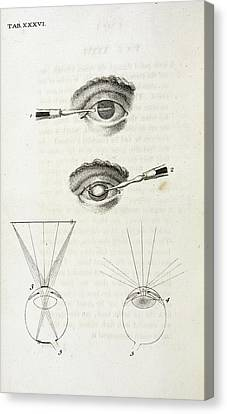 Eye Surgery Canvas Print by British Library