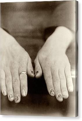 Fingernail Loss Due To Syphilis Canvas Print