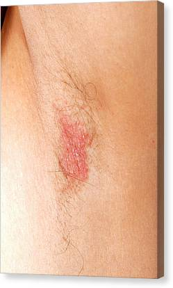 Flexural Psoriasis Of An Armpit Canvas Print by Science Photo Library