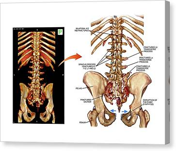 Fractured Pelvis And Spine Canvas Print by John T. Alesi