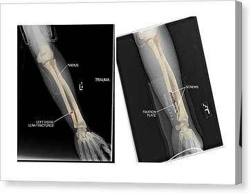Fractured Ulna Bone And Fixation Canvas Print by John T. Alesi