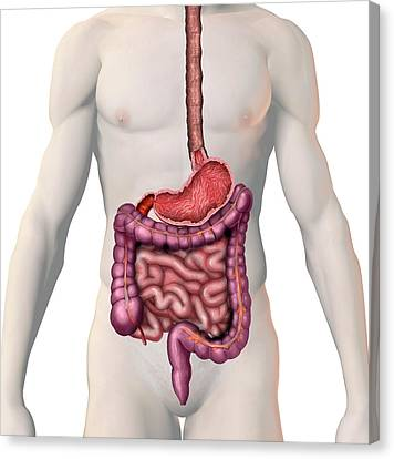 Gi Tract Canvas Print by Carol & Mike Werner