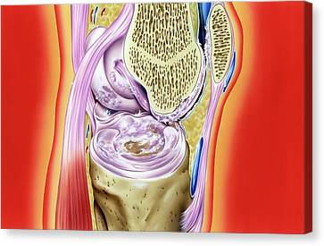 Gout In Knee Joint Canvas Print by John Bavosi
