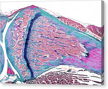 Histology Canvas Print - Growing Bone by Microscape