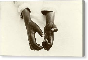 Hands Disfigured By Leprosy Canvas Print by American Philosophical Society