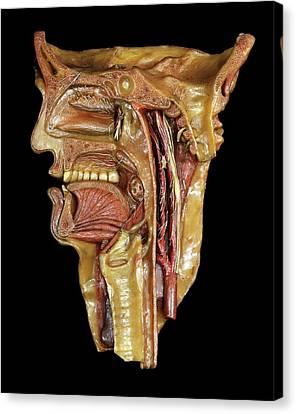 Median Canvas Print - Head And Throat Model by Javier Trueba/msf